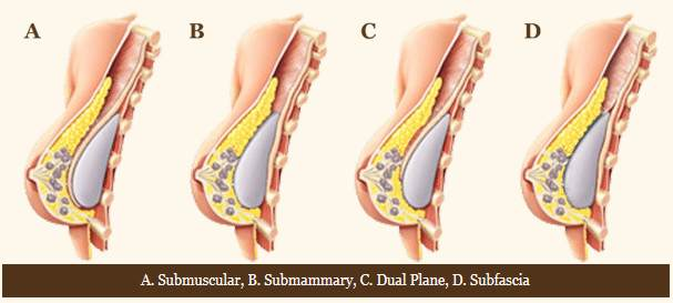Breast surgery incisions - Submuscular, Submammary, Dual Plane, Subfascia