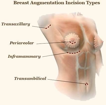 Breast enlargement surgery incision types