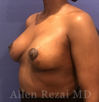 After-Breast Uplift with Implants