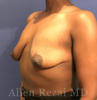 Before-Breast Uplift with Implants