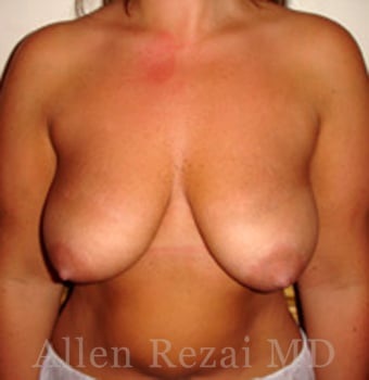 Before-Breast Uplift