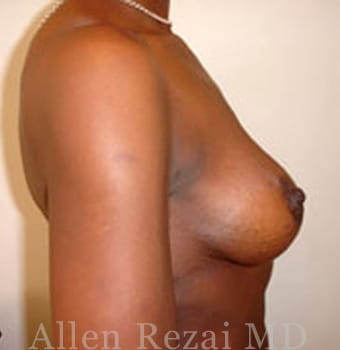 After-Breast Uplift