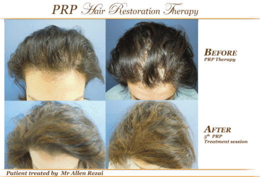 Before-and-after-PRP-1