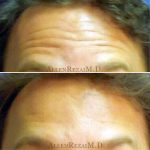 12-Forehead Lines Treated with Botox