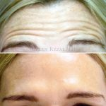 5-Forehead Lines Treated with Botox