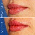 Lips14