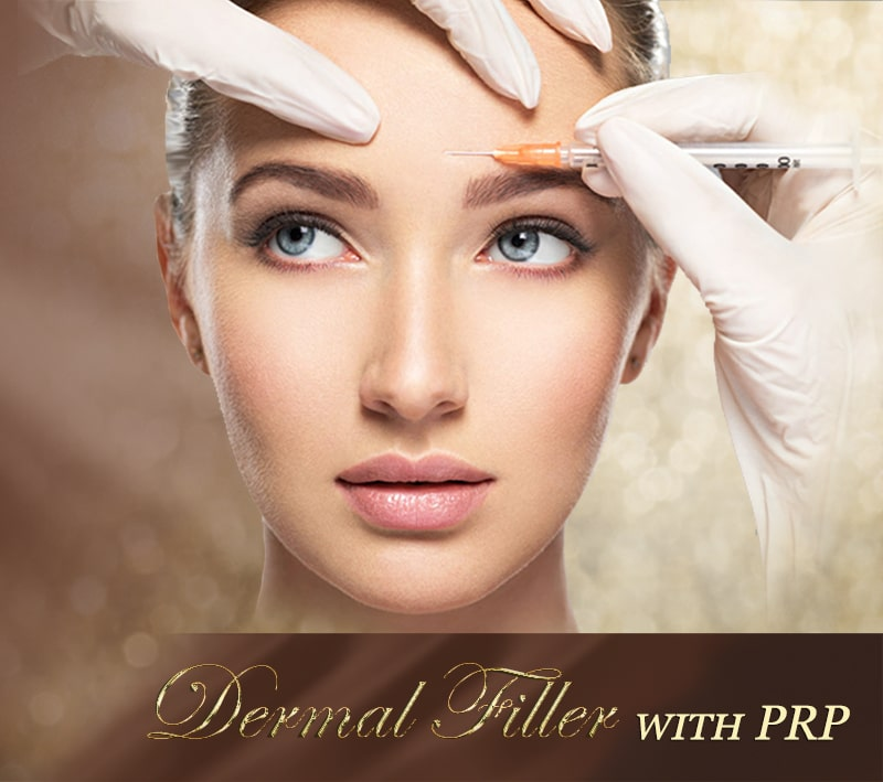 dermal filler with prp -mobile