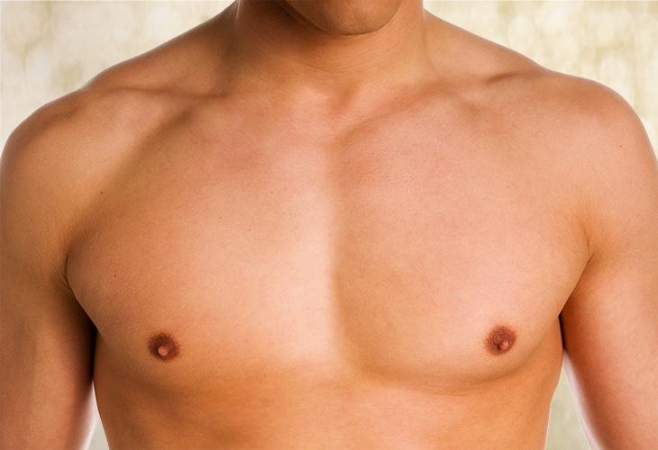 gynecomastia surgery London