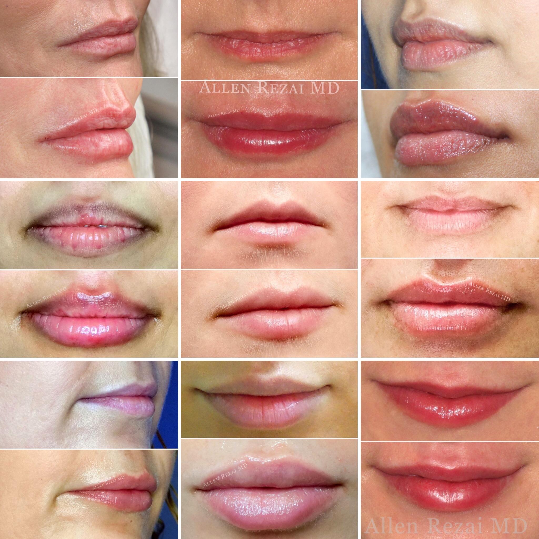 Allen Rezai Lip Filler3
