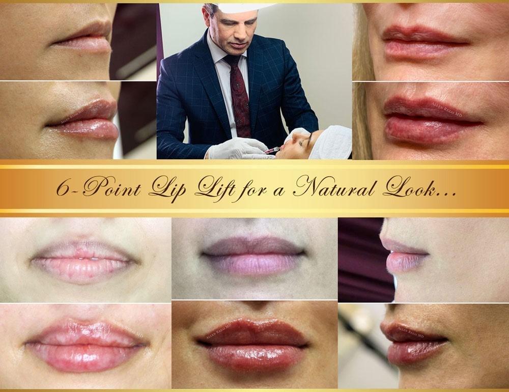 6-point lip lift