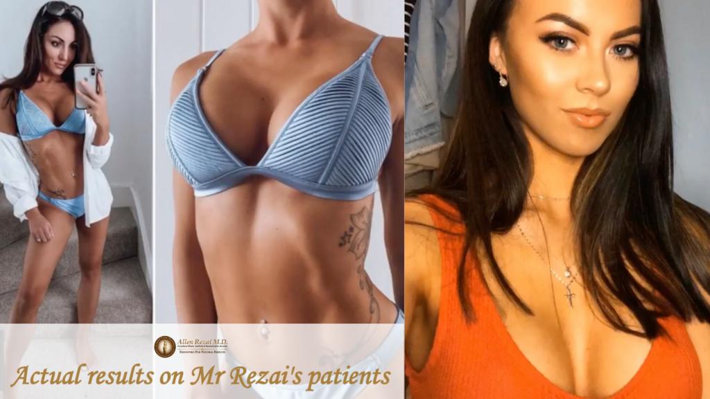 Allen Rezai Natural Look Breasts