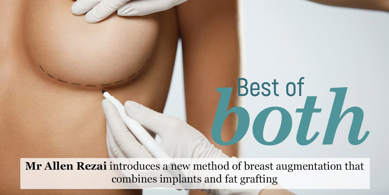 Mr Allen Rezai introduces a new method of breast augmentation that combines implants and fat grafting