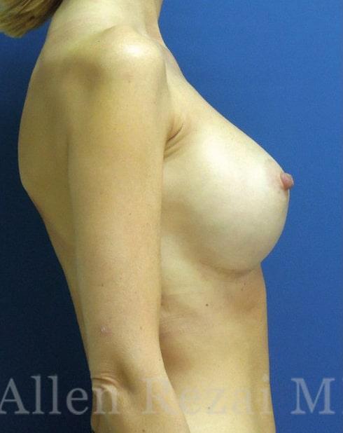 After-Hybrid Breast Augmentation
