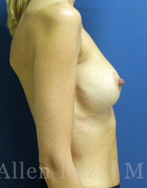 Before-Hybrid Breast Augmentation